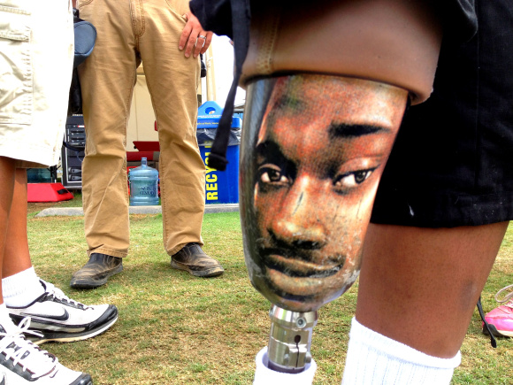 A young Skins fan has RG3's face on his leg.