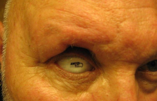 Bill Vandenbush, a diehard Seattle fan, has a Seahawks logo on his prosthetic eyeball.