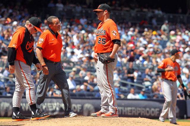 Bud Norris's groin injury will require a DL stint. (USATSI)