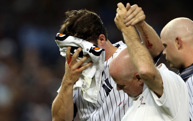 Bryan Mitchell took a line drive to the face on Monday.