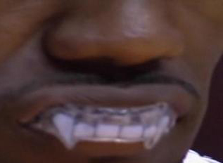 lebron-james-mouthguard-fangs