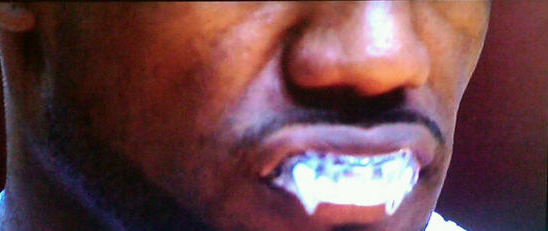 lebron-james-fangs-mouthguard