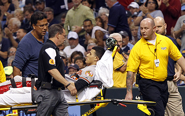 As bad as it looked, the news could have been worse for Manny Machado. (USATSI)