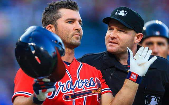 Dan Uggla, diagnosed with astigmatism this spring, will be getting his eyesight fixed. (USATSI)
