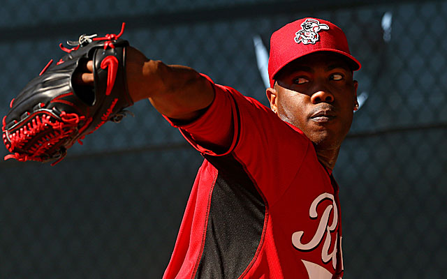 Aroldis Chapman suffered facial fractures when he was hit by a line drive. (USATSI)