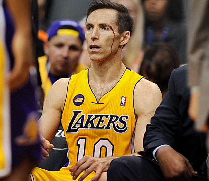 Steve Nash scores 19 points against his former team, and also comes away bloody in a losing effort. (USATSI)