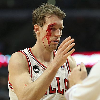 At halftime, Mike Dunleavy has zero points and 10 stitches. In the third quarter, he scores 18 points on 7-of-11 shooting.  (Getty Images)