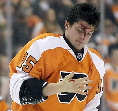 Philadelphia left wing Tye McGinn assesses the damage after a fight with Toronto's Mike Brown in the first period.  (AP)